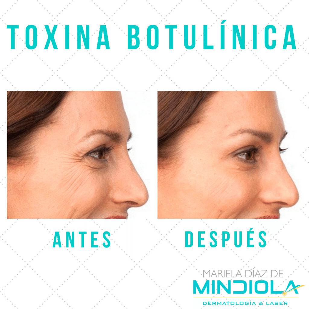TOXINA BOTULINICA:  Botox ®, Dysport ®, Maxitox ® Otesaly ®